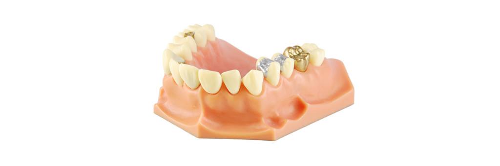 Amalgam används för att laga tänder